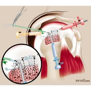 Intervención en el hombro con una artroscopia